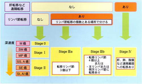 大腸がんの病気診断、ステージ分類