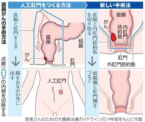 肛門温存手術