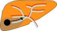 カテーテル塞栓療法 (TACE)